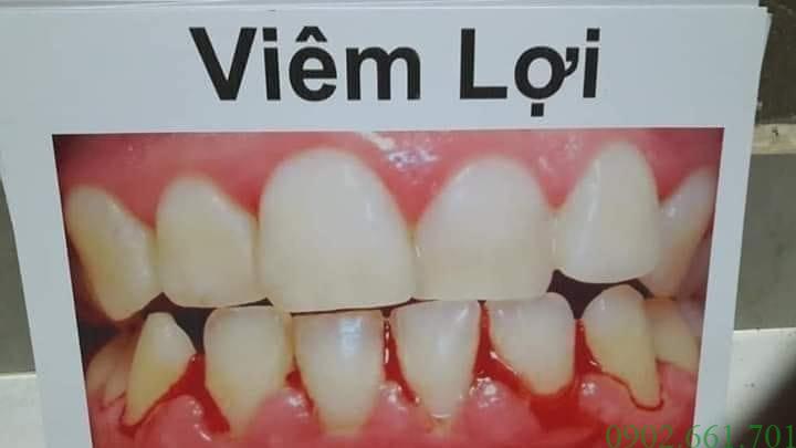 Dr Smile Chuyên Gia Chăm Sóc Răng Miệng